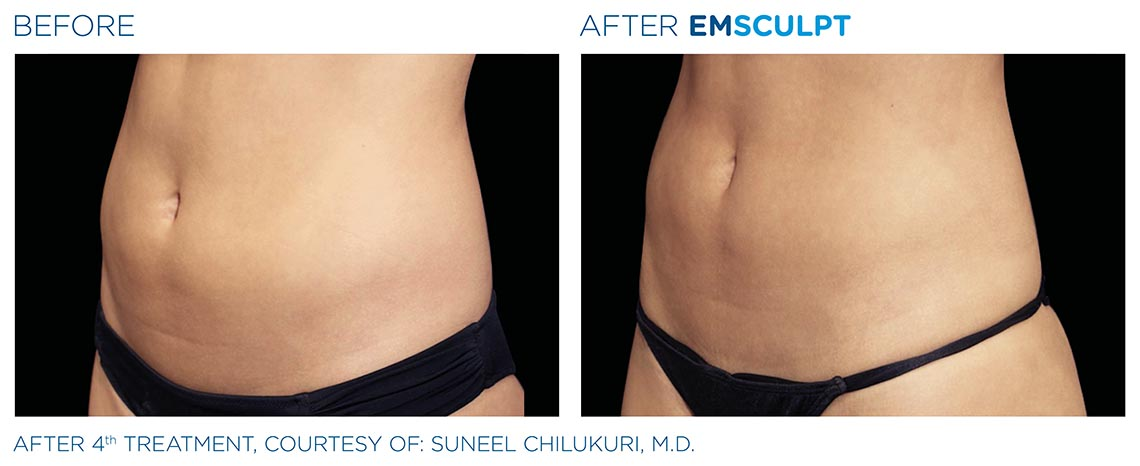 abdomen before and after 4th emsculpt treatment