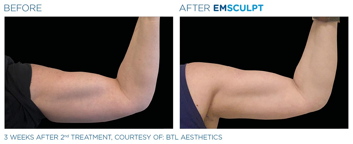 bicep before and after 3 weeks, 2nd emsculpt treatment