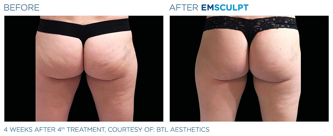 glutes before and after 4 weeks, 4th emculpt treatment