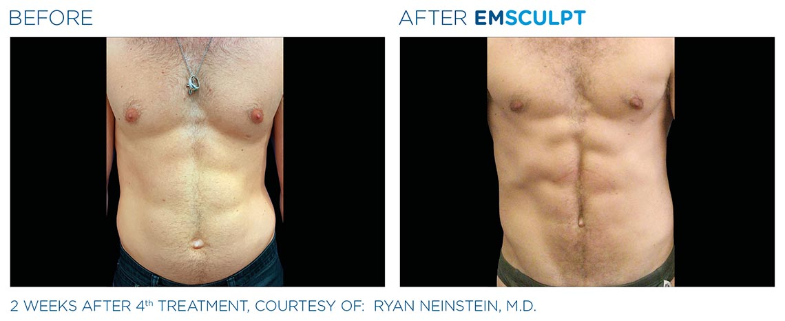 male abdomen before and after 2 weeks, 4th emsculpt treatment