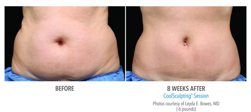 Before and After 2 with Coolsculpting
