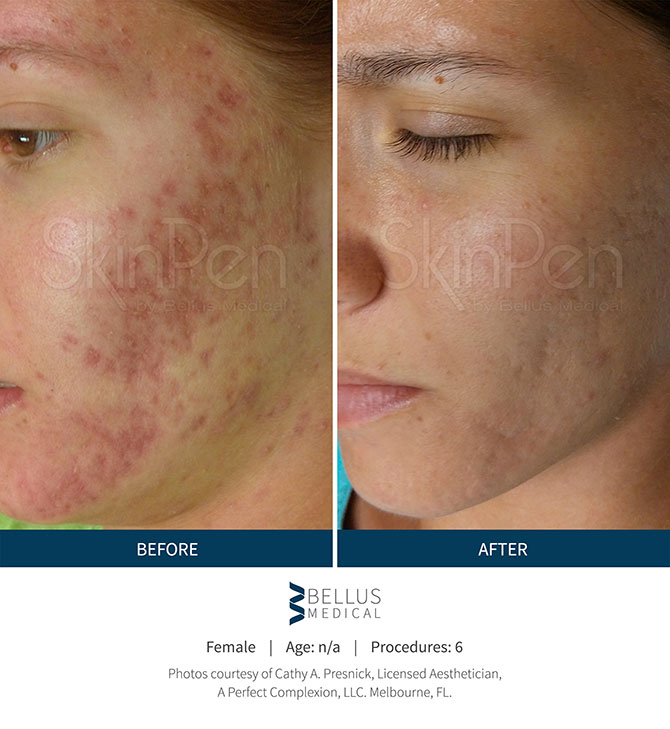 Young Woman Before And After Receiving SkinPen Microneedling