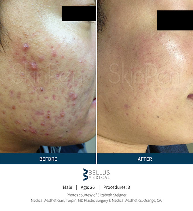 Woman Before And After Receiving SkinPen Microneedling