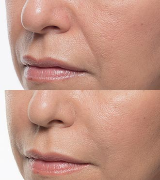 Bellafill Skin Treatment Before & After