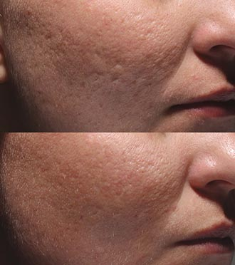 Bellafill Cosmetic Treatment Before & After