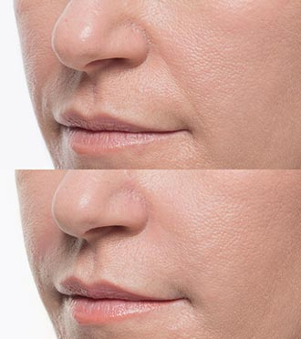 Bellafill Demratology Treatment Before & After