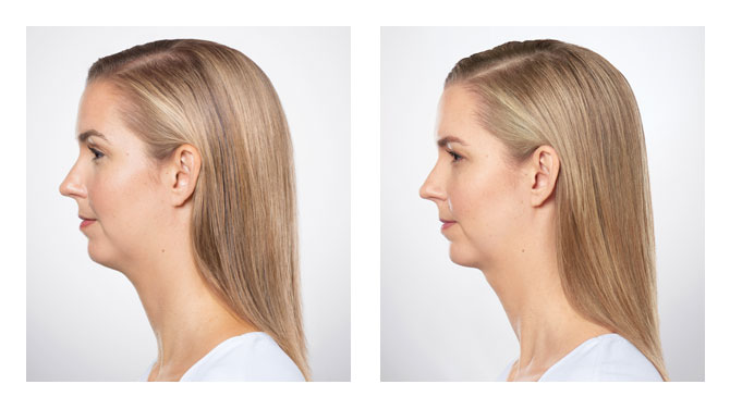 Kybella Before-After 1