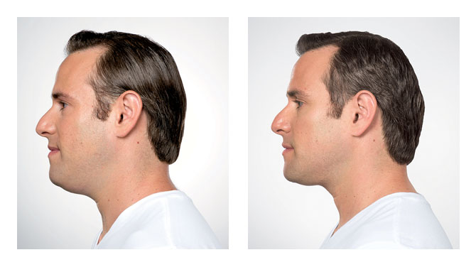 Kybella Before-After 2