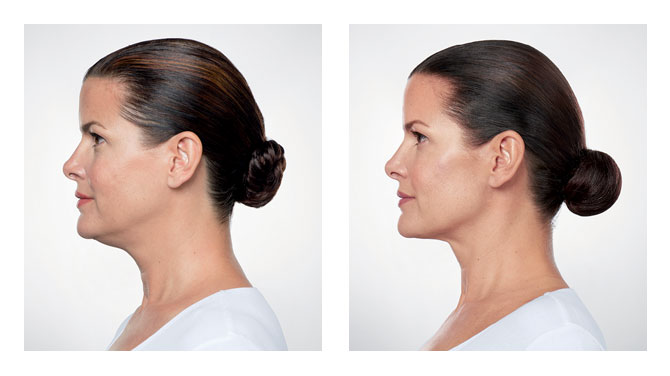 Kybella Before-After 3