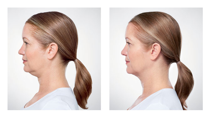 Kybella Before-After 4