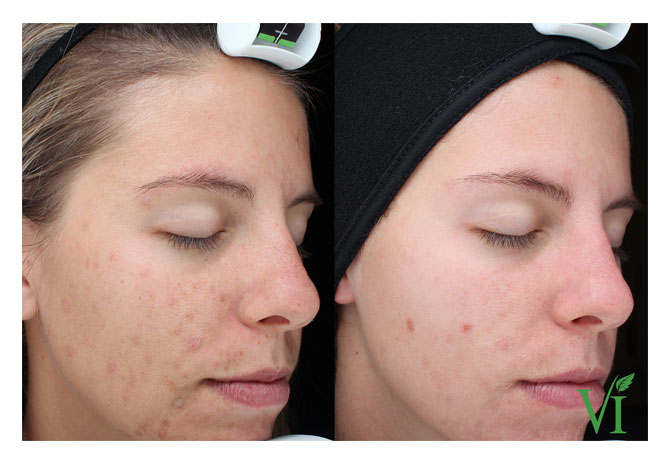 VI Peel Before & After Photos