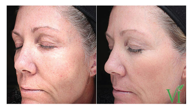 VI Peel Before and After 2