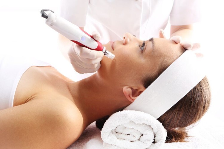 Micro-Needling: It's the New Thing